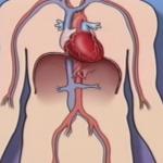 Update: Angiogram / Heart Catheter Balloon + Stent (80% Blockage)